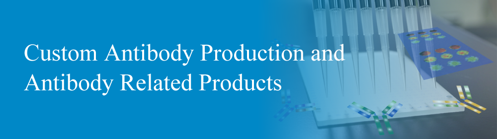 Custom Antibody Production and Antibody Related Products